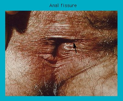 Photograph Of Anal Fissure